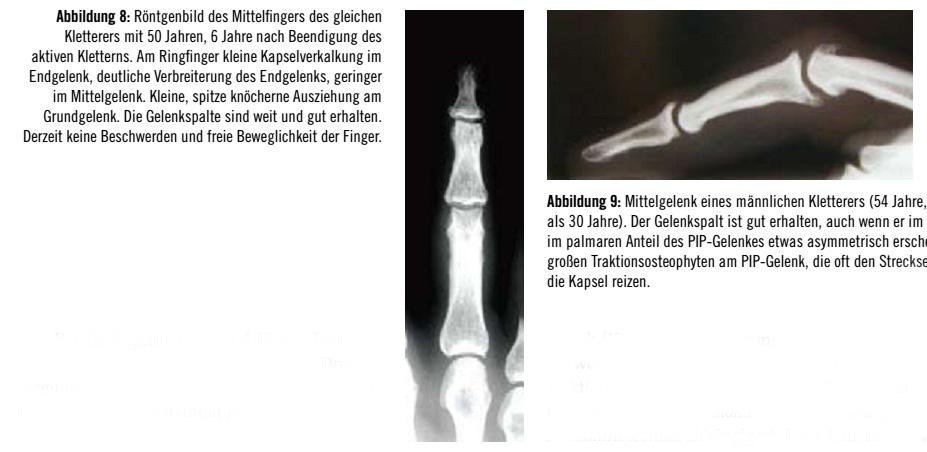 Degenerative Veränderungen der Fingergelenke bei Sportkletterern