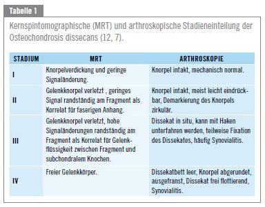 Knorpelschaden im Knie: Das allmähliche Absterben von Gelenkknorpel